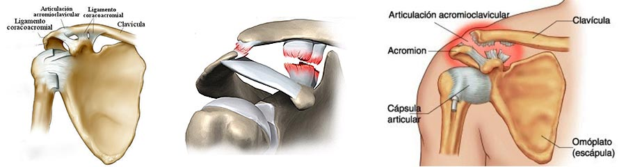 Dr. Diego Albertengo - Síndrome de Fricción Subacromial y Lesiones ...