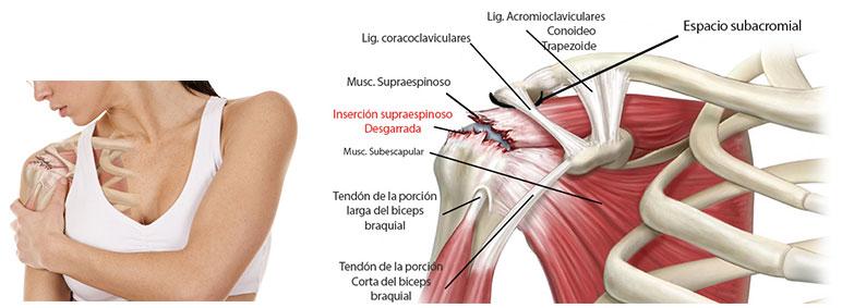 y de Diego Albertengo Síndrome Fricción Subacromial Dr Lesiones zwY7tqdw